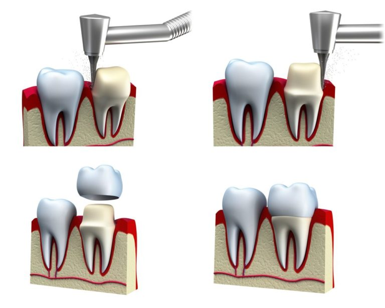 4 image diagram of a tooth being drilled and re-crowned