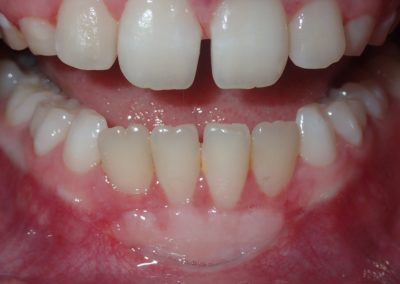 Avery After Gum Graft