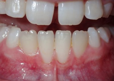 Avery Before Gum Graft